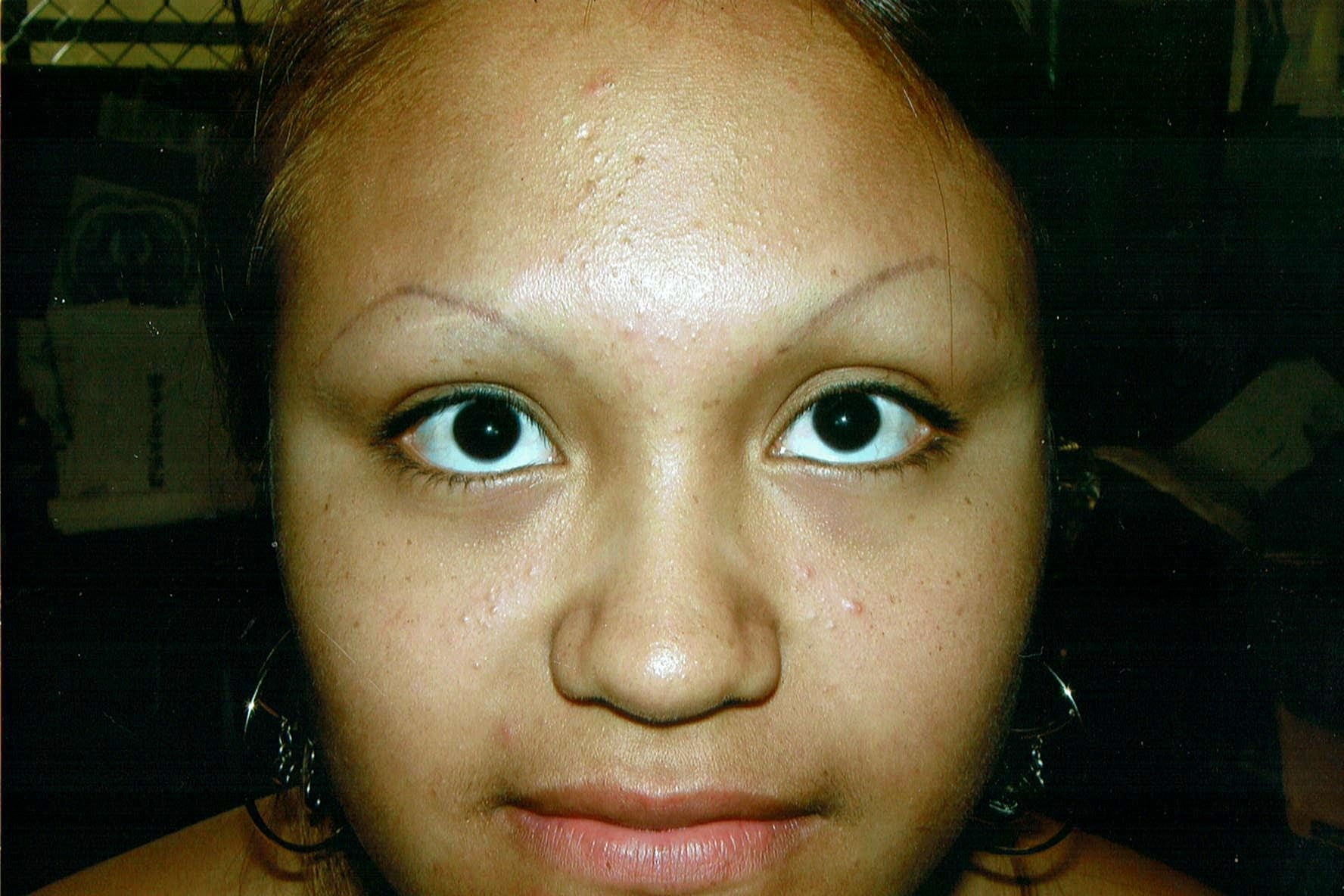 cosmetic tattoo eyebrows before image